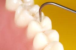 gentle-dental