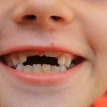 bronx-dental-implants-150x150
