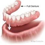 full-denture-150x150