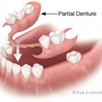 partial-denture2-150x150