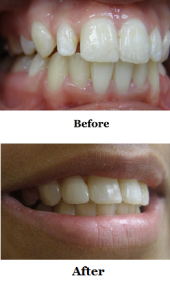 Single Crown Before & After