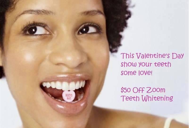 valentines $50 off