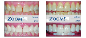 Teeth-Whitening before and after